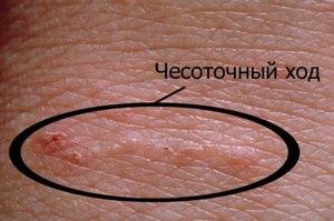 Чесотка симптомы фото первые признаки лечение