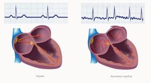 Особенности аритмии сердца: симптомы и причины, лечение болезни