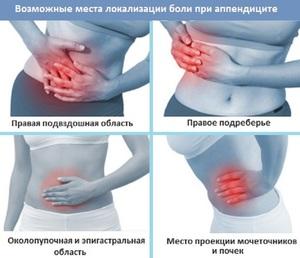 Боль при аппендиците в правом боку живота