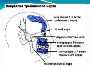 Симптоым воспаления тройничного нерва