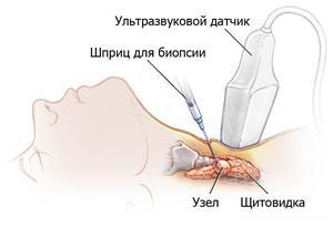 Зачем делают УЗИ щитовидной железы