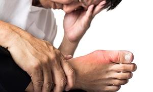 Лечение подагры при обострении в домашних условиях
