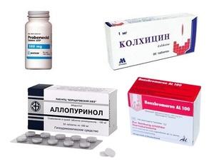 Перечень и описание лекарственных средств для лечения подагры