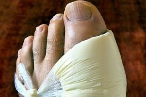 Как лечить подагру в период обострения: медикаментозная терапия и ...