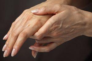 Что может означать онемение рук