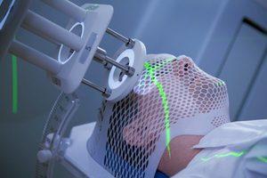 Лучевая терапия при онкологии