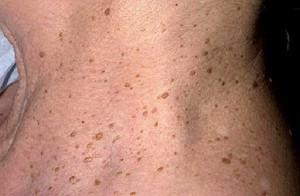 Кератома кожи