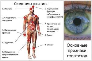 Признаки гепатита с у женщин и мужчин