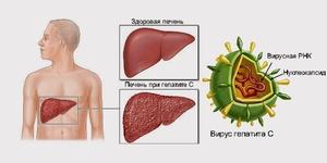 Какие признаки у заболевания