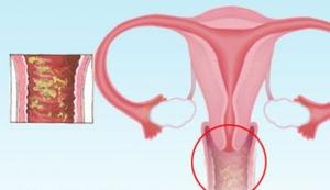 Что такое женская молочница