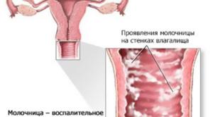Признаки молочницы у женщины