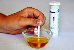 Ацетон в моче - причины повышенного содержания