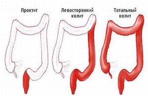 Лечение патологии кишечника