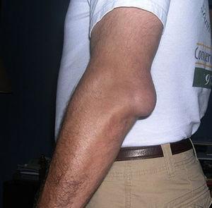 Почему возникает заболевание бурсит