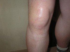 Боли в коленных суставов