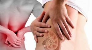 Причины болей в спине у женщин