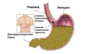 Причины заболевания рефлюкс