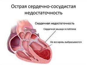 Признаки сердечно-сосудистой недостаточности