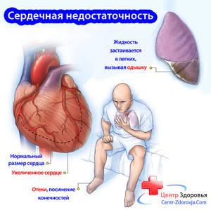 Симптомы сердечно-сосудистой недостаточности