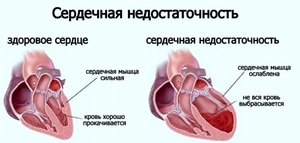 Хирургическое лечение сердечно-сосудистой недостаточности