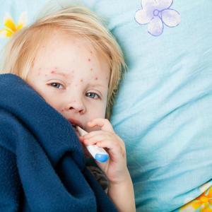 Как лечить энтеровирус у детейй
