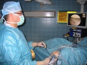 Операция артроскопия  - лечение коленного сустава