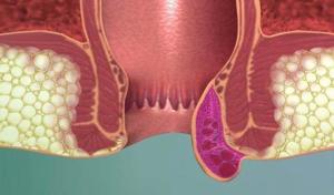 Поможет болиголов и в лечении запора и геммороя
