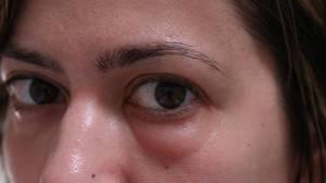 Мешки над глазами и под глазами причины и лечение thumbnail