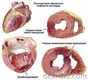 Обширный инфаркт сердца: симптомы, лечение и восстановление ...