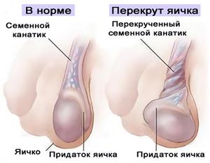 Дискомфорт в яичках у мужчин причины