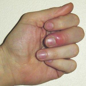 Лечение панариция на пальце на руке