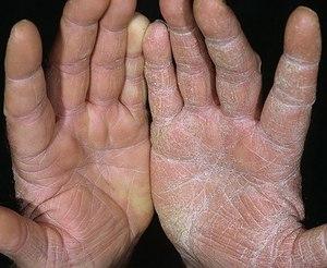 тресается кожа возле влагалища