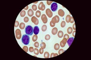 Повышение лейкоцитов в мазке не всегда свидетельствует о патологии