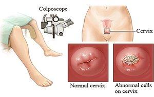 Особенности проведения процедуры биопсии