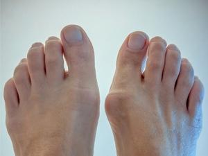 Особенности лечения подагры на большом пальце ноги: симптомы ...