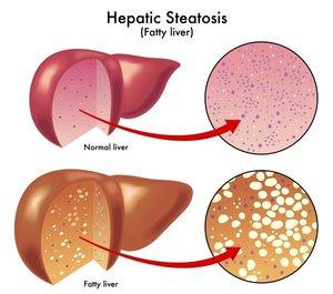 Диффузные изменения печени, поджелудочной железы (гепатомегалия)