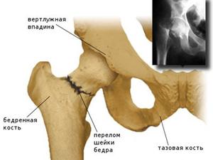 Сложности перелома шейки бедра у пожилых людей, лечение, условия ...