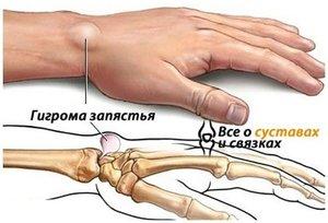 Гигрома запястья левой руки