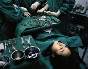 Как проходит операция по смене пола