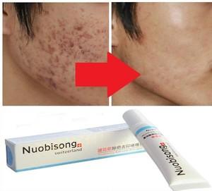 Средства для устранени рубцов на лице