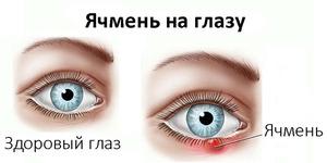 Болят глаза из-за ячменя
