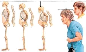 Признаки остеопороза позвоночника