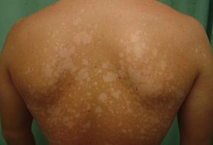 Белый лишай – заболевание кожи неизвестного происхождения, сопровождающееся специфическими симптомами
