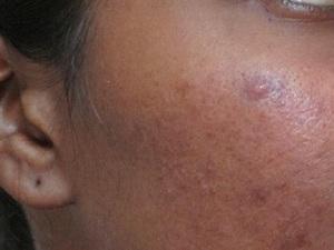 Как ухаживать за кожей, чтобы избежать появления угрей