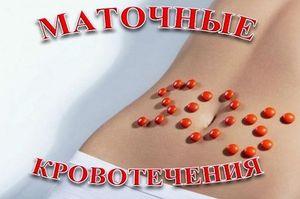Обзор видов маточных кровотечений, причины, симптомы и лечение ...