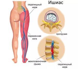 Защемление корешкового нерва в пояснице