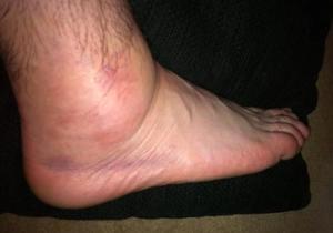 Народные методы лечения отека ног
