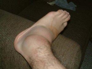Чем лечить отек ног