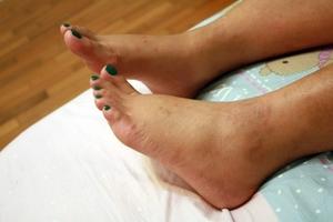 Причины отека ног у области щиколотки