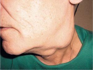 Как лечить рак лимфоузла